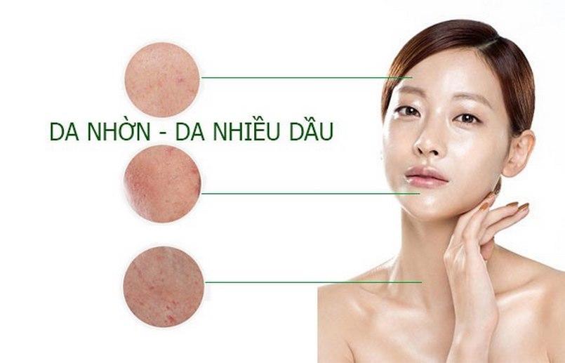 Các loại da nhờn sẽ luôn tiết nhiều dầu