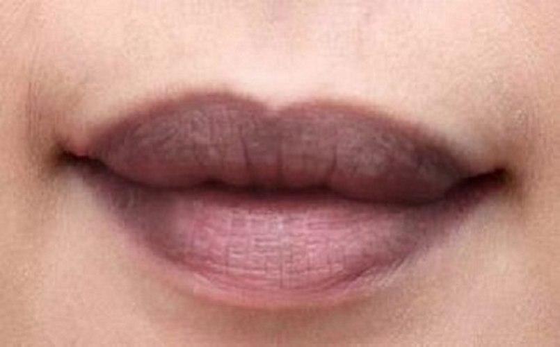 Trị thâm môi là chủ đề rất được quan tâm