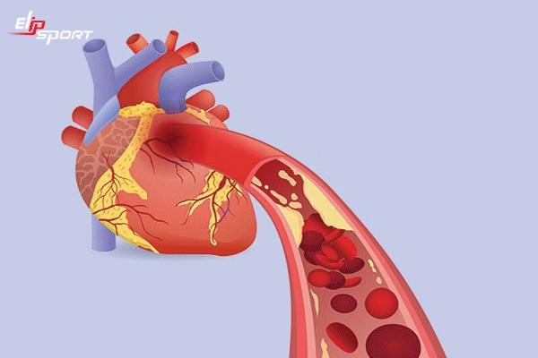 huyết áp tâm thu
