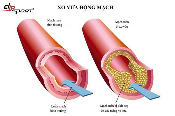 Đặt stent mạch vành và những điều cần lưu ý - ảnh 1