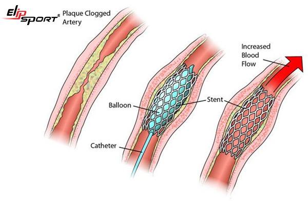 Phẫu thuật đặt stent mạch vành có nguy hiểm không? - ảnh 1