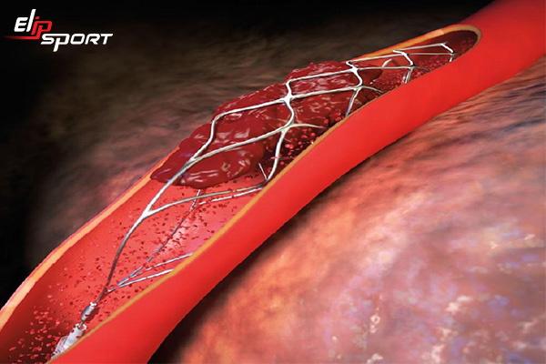 Phẫu thuật đặt stent mạch vành có nguy hiểm không? - ảnh 3
