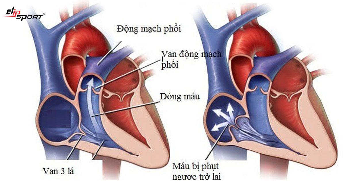 Hở van tim 3 lá có nguy hiểm không? Triệu chứng hở van 3 lá