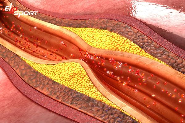Bệnh nhồi máu cơ tim là gì? Cơ chế và mối liên quan với đột quỵ