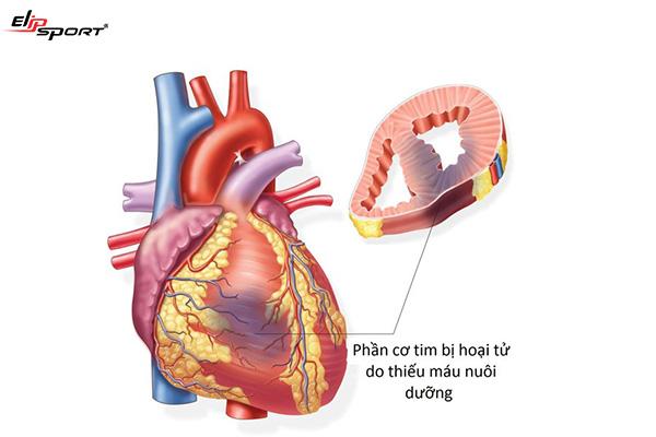 Biến chứng suy tim