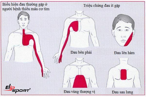 Điều trị bệnh tim thiếu máu cục bộ