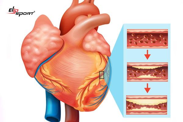 nguyên nhân thiếu máu cơ tim