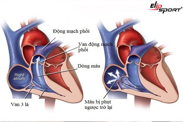 Hẹp van tim 3 lá là gì