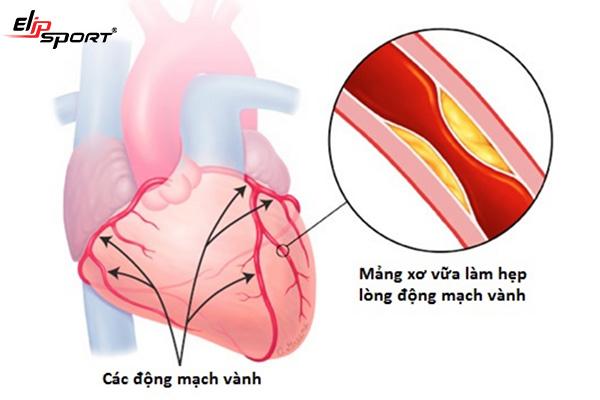 Cách chữa đau tim tại nhà