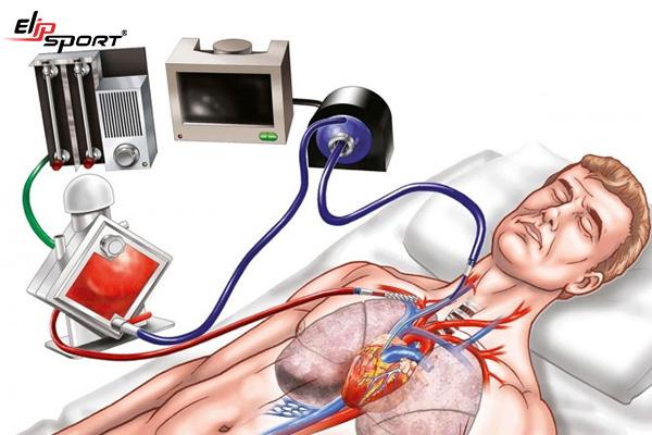 viêm cơ tim cấp