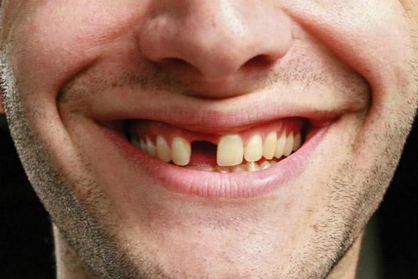 Giải Đáp Thắc Mắc Về Trồng Răng Implant