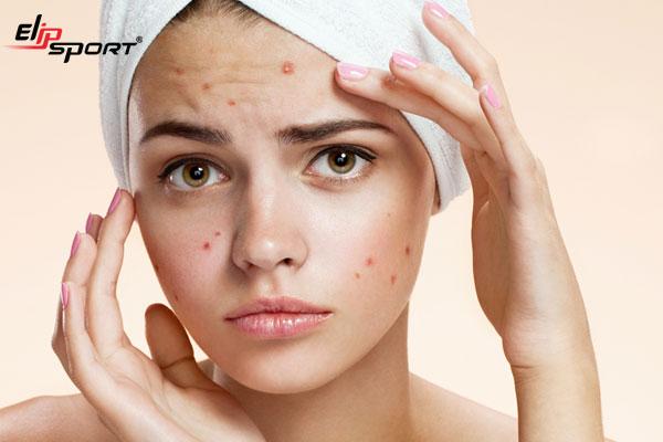 Cách chăm sóc da mỏng và yếu trở nên khỏe đẹp