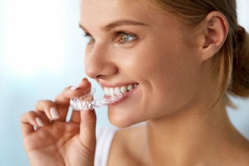 ưu điểm của niềng răng