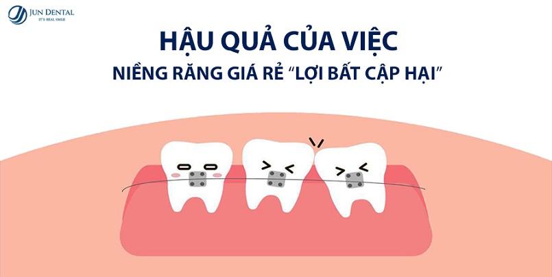 hậu quả của niềng răng