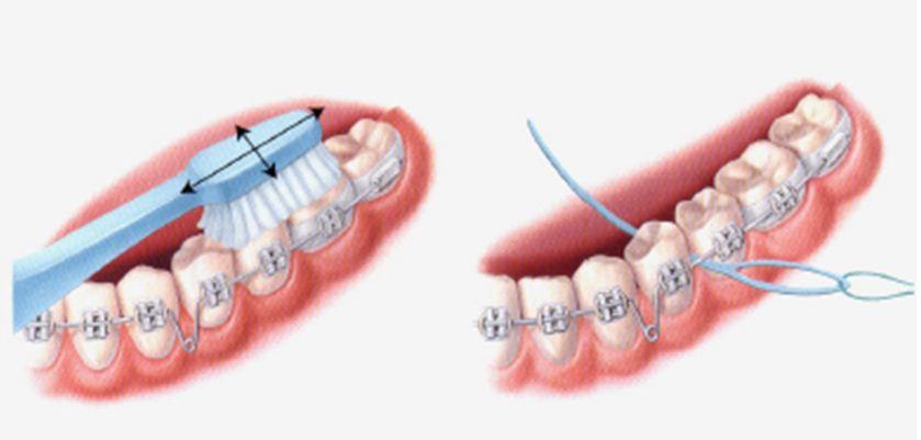 Chăm sóc khi niềng răng