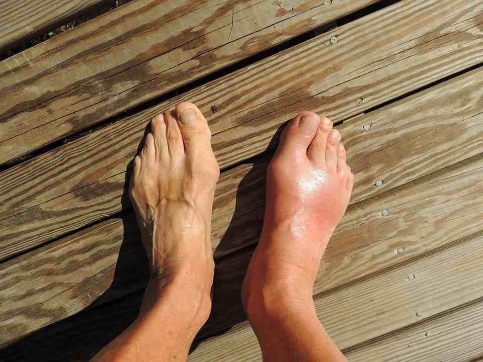 bệnh gout có biểu hiện gì