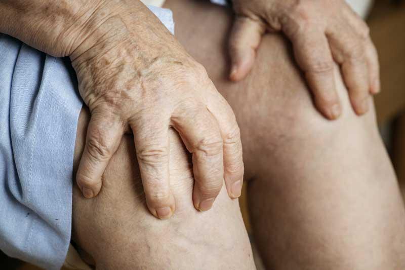 bệnh gout và biến chứng