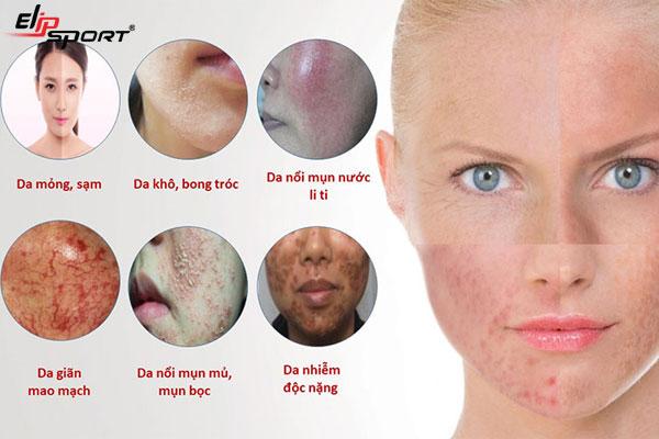Cách chăm sóc da bị nhiễm Corticoid