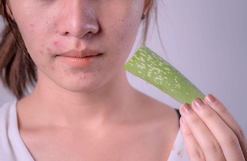 cách trị thâm mụn với gel nha đam