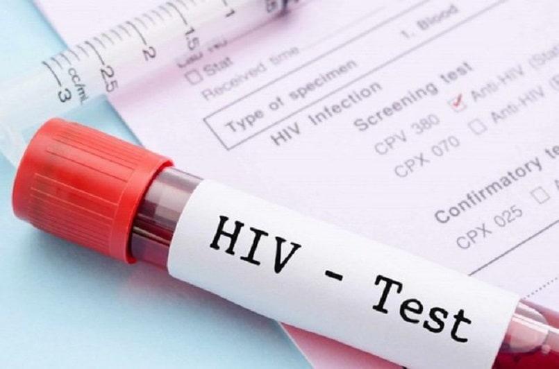 Xét nghiệm HIV AIDS