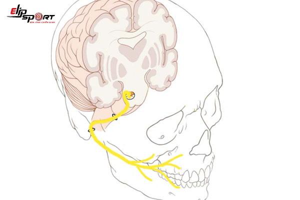 liệt dây thần kinh số 7