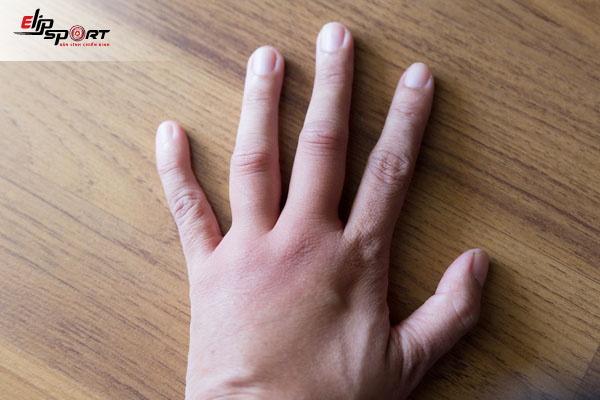 triệu chứng viêm khớp