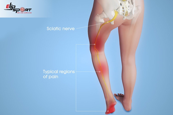 hiện tượng đau cơ mông