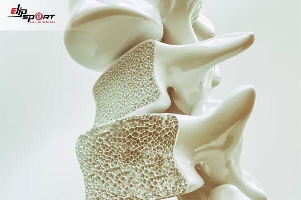 bệnh đau xương khớp