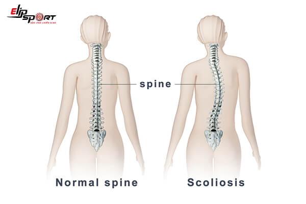 nắn chỉnh xương khớp