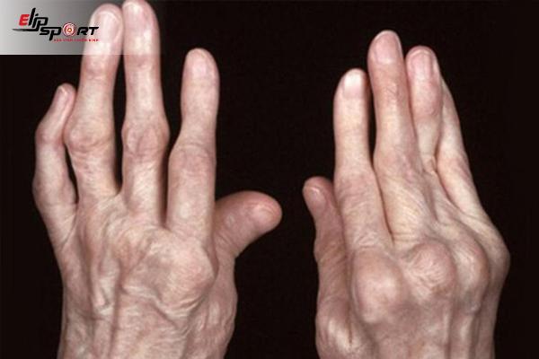 Nguyên Nhân Gây Bệnh Bệnh Thấp Khớp Và Cách Điều Trị