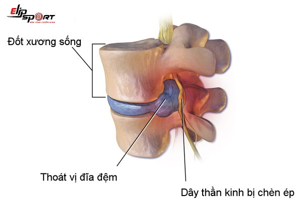 bê vật nặng bị đau lưng