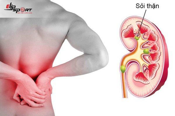 Đau Vùng Thắt Lưng Là Bệnh Gì Và Cách Chữa