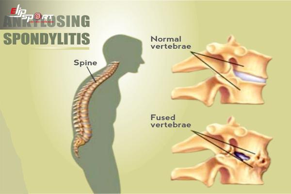 bệnh viêm cột sống dính khớp có chữa được không