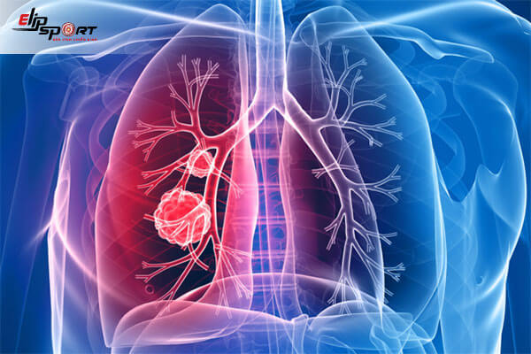 triệu chứng đau vai gáy
