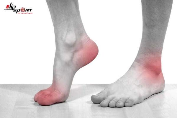 đau nhức bàn chân