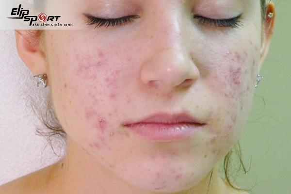 chăm sóc da bị viêm chân lông