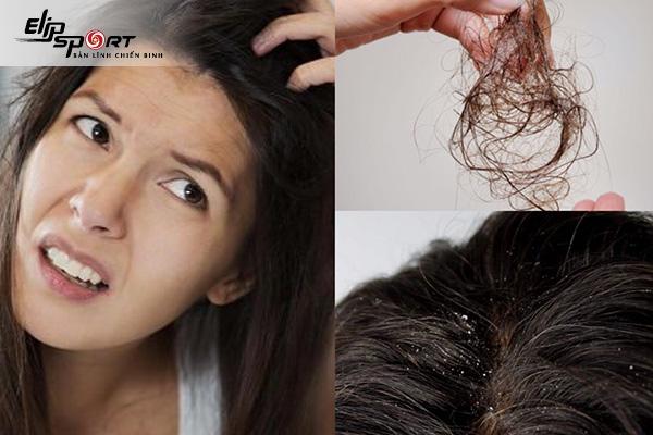 tóc rụng và nhiều gàu