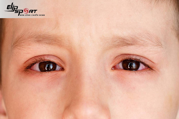 đau mắt đỏ uống thuốc gì