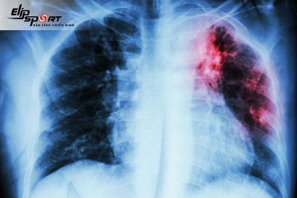 bị lao phổi nhưng không ho