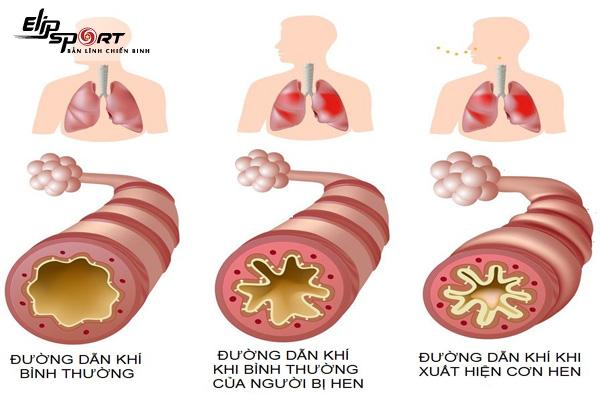 triệu chứng hen suyễn