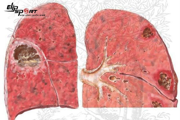 bệnh phổi kẽ