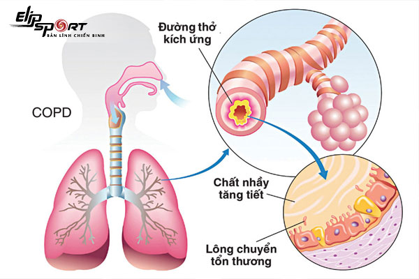 triệu chứng của bệnh phổi