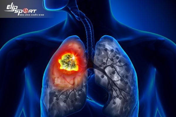 u phổi lành tính