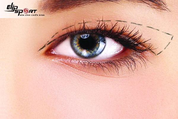 giảm mỡ mí mắt trên