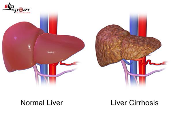 bệnh gan và triệu chứng