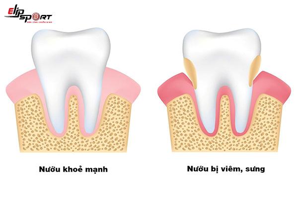 bị viêm răng lợi