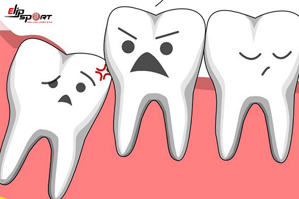 chăm sóc răng sau nhổ