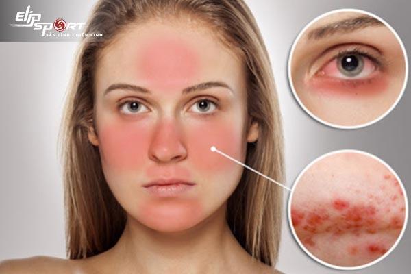 Cách chăm sóc da mặt bị dị ứng
