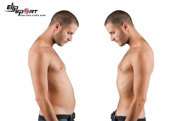 tạng người skinny fat