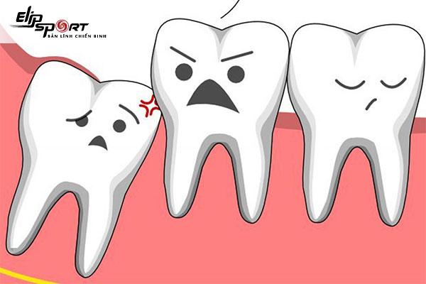 nhổ răng khôn trước khi mang thai